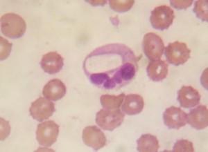 Huella de Hepatozoon canis en el neutrófilo de un paciente canino. El Hepatozoon abandona la célula ante cambios en la temperatura.